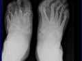 foot_psoriatic_arthritis_