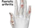 psoriatic-4arthritis