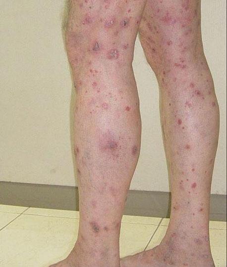 plaque psoriasis on knees