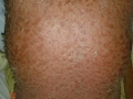 erythrodermic-psoriasis-back-side