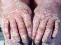 erythrodermic-psoriasis