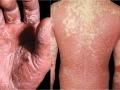 erythrodermic-pustular-psoriasis