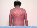 mcdc7_erythrodermic_psoriasis