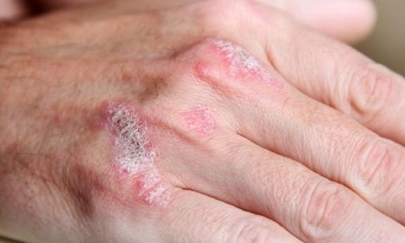 Inverse or flexural psoriasis frequently presents are red shiny patches in the skin folds 3