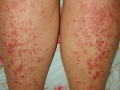 guttate-psoriasis-pictures-2