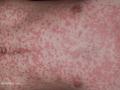 guttate-psoriasis1