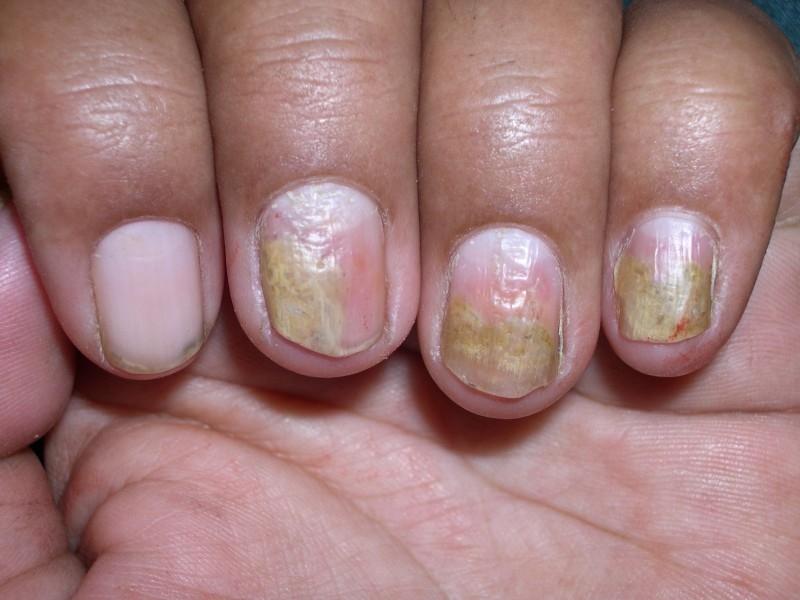 Nail Psoriasis - WebMD