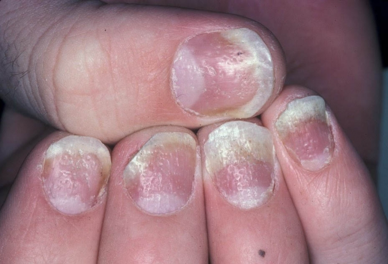 Psoriasis Around Fingernails