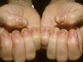 dermnet_rf_photo_of_psoriasis_on_fingernails