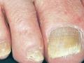 fingernail-crumbling-nail-psoriasis-crumbled