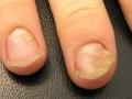 psoriasis_nail_004