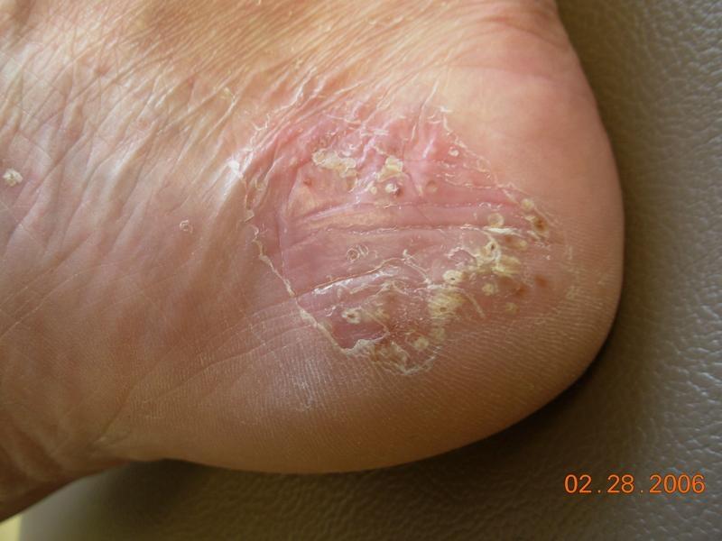 pustular eczema
