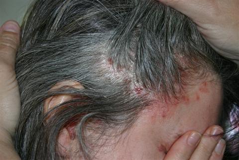 treatment psoriasis skin diseases