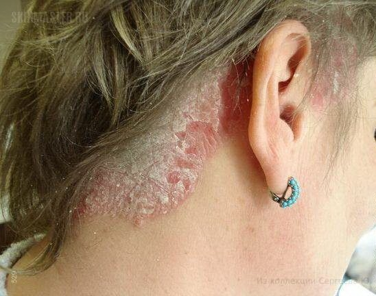 how to use turmeric for scalp psoriasis