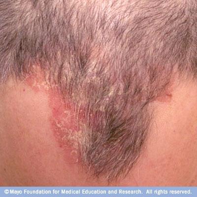 Грибок на коже головы лечить шампунь
