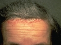 scalp-psoriasis-forehead