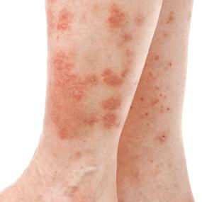 Inverse Psoriasis legs