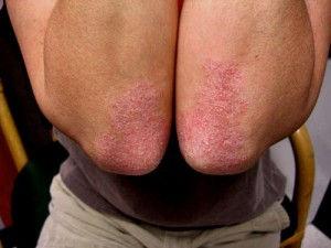 plaque psoriasis symptoms arms