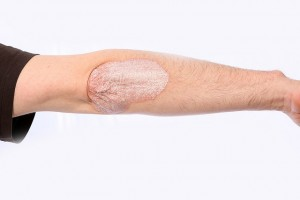 plaque psoriasis symptoms on the elbow