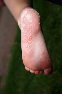 plaque psoriasis symptoms legs