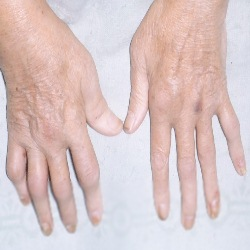 psoriasis arthritis symptoms