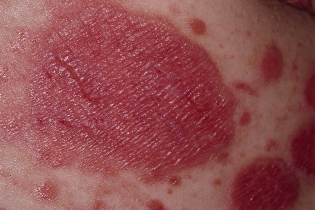 Flexural psoriasis on the body
