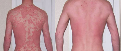 Inverse Psoriasis back