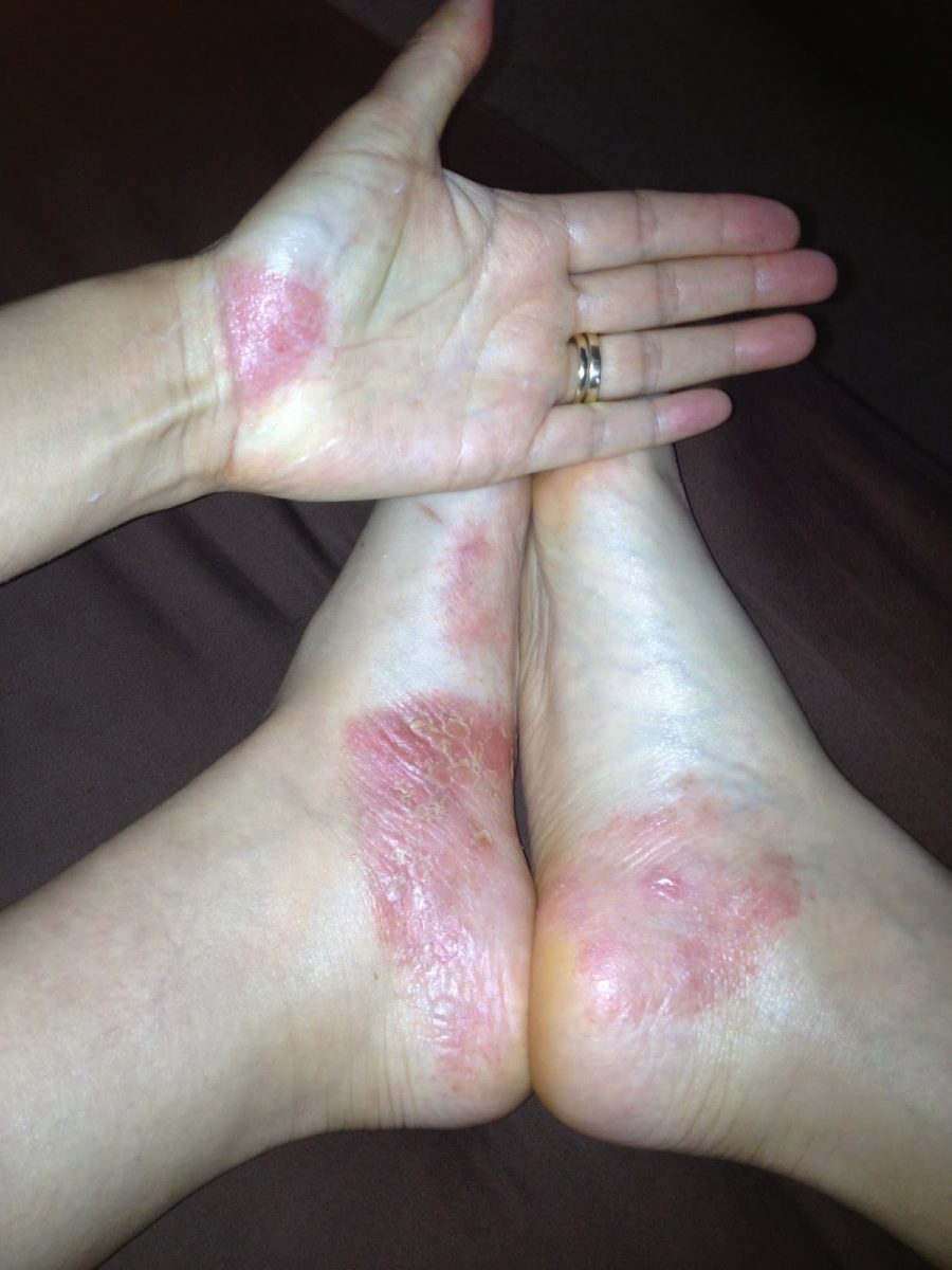Pagano diet psoriasis on the hands and legs