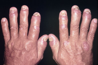 Psoriatic arthritis photos hands