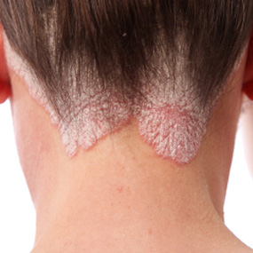 Scalp psoriasis on the neck