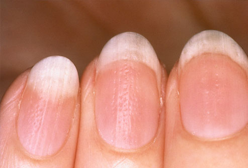 nail psoriasis best treatment