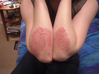 natural psoriasis treatment on the elbows