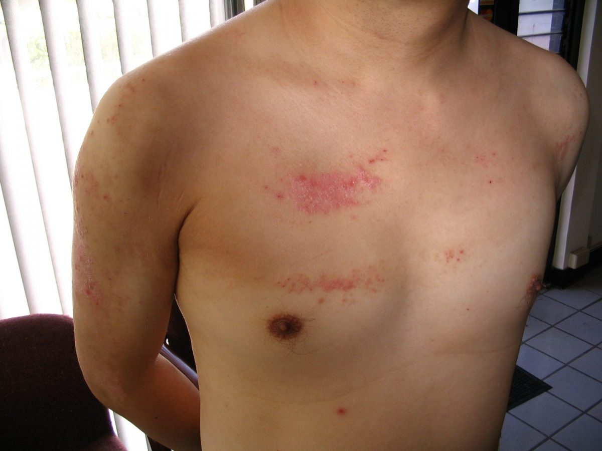 Treat Psoriasis Natural Remedies