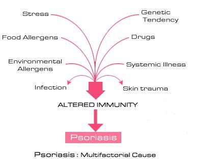 Triggers of psoriasis