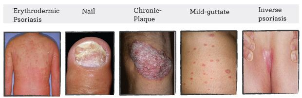 Types of Psoriasis table