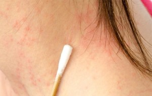 how do you get psoriasis on your neck