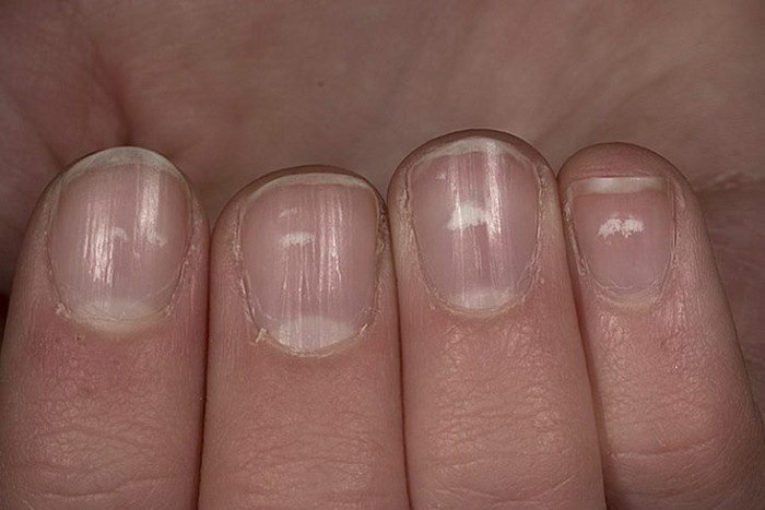 nails fingernail psoriasis treatment
