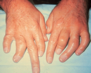 psoriasis arthritis treatment options
