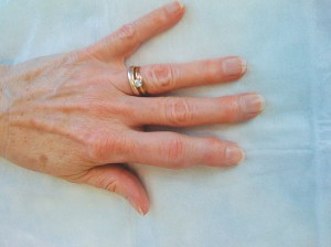 psoriasis arthritis treatment on the fingers