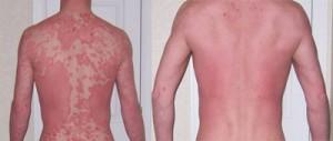 psoriasis natural treatment methods