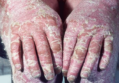 psoriasis natural treatment options