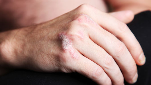 Guttate psoriasis treatment