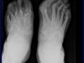 foot_psoriatic_arthritis_