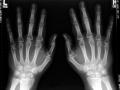 psoriatic_arthritis_4