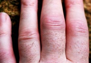 facts_about_psoriatic_arthritis