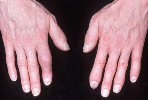 phototake_rm_photo_of_psoriatic_arthritis