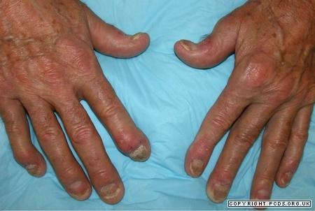 psoriasis-s11-psoriatic-arthritis_450_302_http-www-pcds-org-ukeeassetsimgwatermark-gif_0_0_80_r_b_-5_-5_