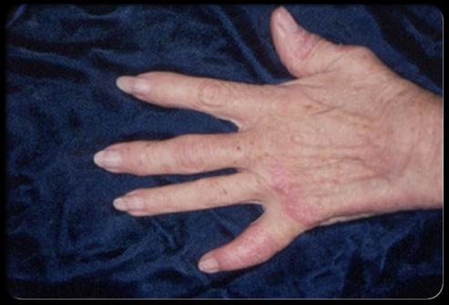 psoriatic-arthritis-s4-photo-of-psoriatic-arthritis