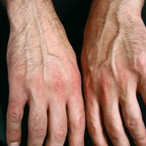 psoriatic-arthritis-treatment