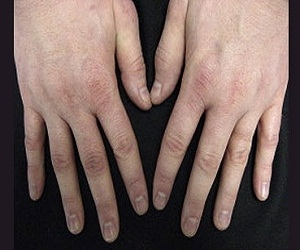 psoriatic-arthritis